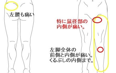左側 女性 腰痛 左腰の痛み(左腰が痛い)の原因をズバリ解説します