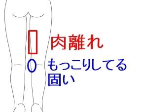 肉離れ おしり お尻の筋肉が肉離れになるメカニズムとは?詳しい症状や予防法を解説